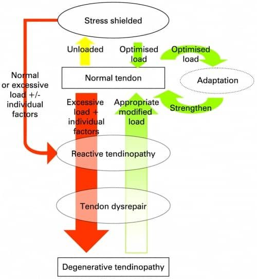 A flowchart displaying the presentation of tendinopathies ranging from stress shielded, to reactive and degenerative tendinopathies.