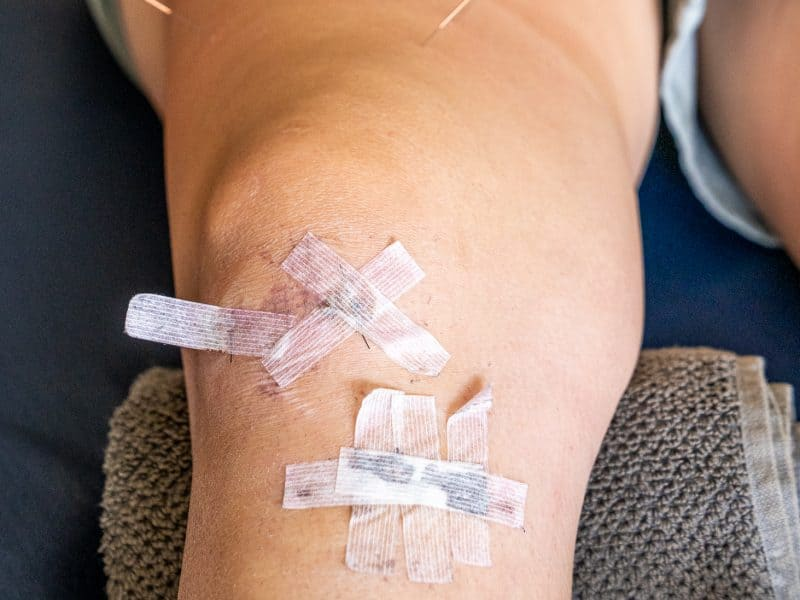 Dry needling of the quadriceps for a client recovering from ACL reconstruction.
