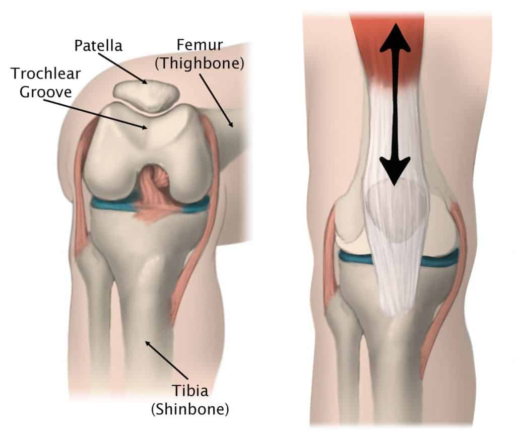 Patellofemoral pain is caused by an increase in forces at the patellofemoral joint where the patella sits within the trochlear groove.